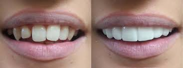 Veneers: Pros and Cons